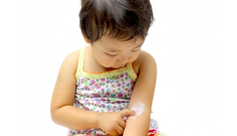アトピー性皮膚炎のかゆみに効く新薬候補を開発 京都大学