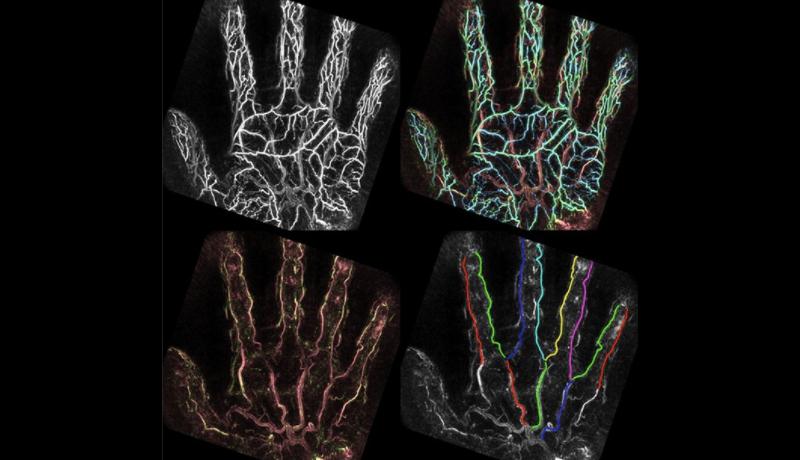 造影剤や医療被ばく無しで血管の精密な画像化と形状解析に成功 京都大