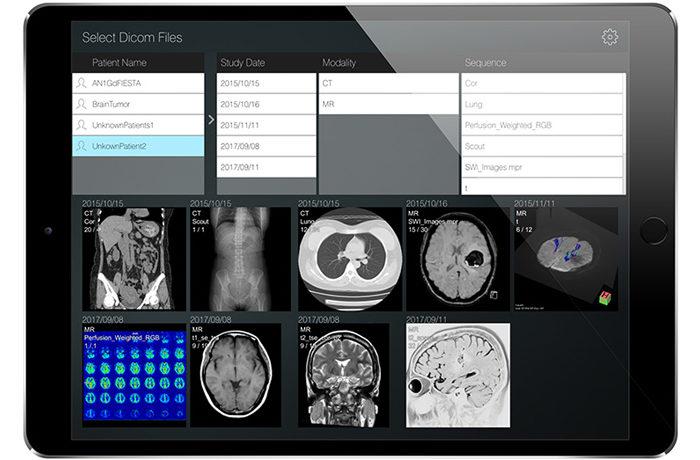CTやMRIなど医用画像が見られる無料アプリ開発