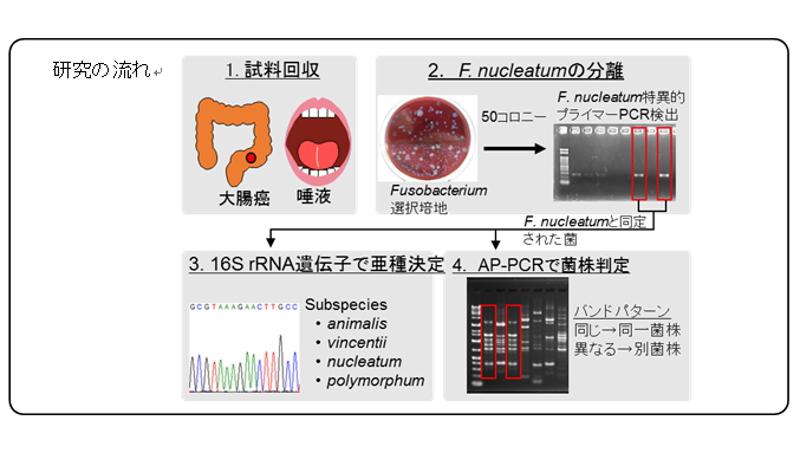 大腸がんの細菌は口の中に由来 新たな治療・予防法への一助に